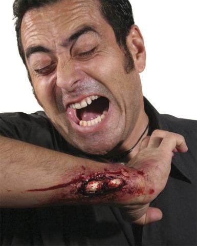 Rana: pęknięta, odsłonięta kość prostetyk D